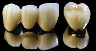 Bọc răng sứ kim loại có tốt không? >>> Tư vấn từ chuyên gia