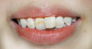 Phương pháp phục hình răng cửa hiện đại nhất hiện nay