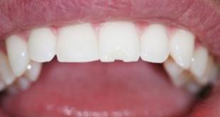 Làm gì khi bị mẻ răng? >>> Giải pháp cho răng bị mẻ
