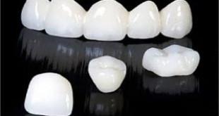 Răng sứ cercon là gì? >>>> Câu trả lời từ chuyên gia hàng đầu thế giới