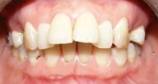 Tuyệt chiêu chữa răng hô giúp bạn trả lời câu hỏi răng hô phải làm sao?