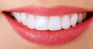 Làm răng phủ sứ – Coi chừng rước họa vào thân từ lời quảng cáo hoa mỹ