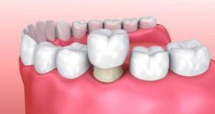 Làm răng sứ cho răng hàm – Ưu điểm, cách thực hiện, loại nào tốt?