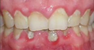 Những bệnh răng miệng liên quan tới sức khỏe cơ thể