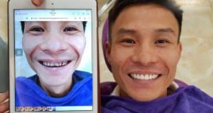 Làm răng sứ đau bao lâu và trở lại bình thường – Nha khoa Dencos luxury