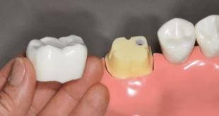 Lưu ý khi làm răng sứ cho răng sâu – Những điều ít người quan tâm