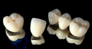 Làm răng sứ kim loại bao nhiêu tiền? Có nên làm răng sứ kim loại không?