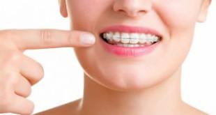 Niềng răng mắc cài nào nhanh nhất? Có những loại nào?