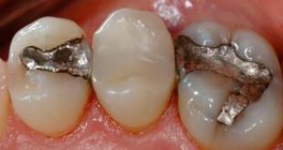 Quy trình hàn trám răng thẩm mỹ CHUẨN tại nha khoa