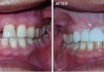 Kinh nghiệm làm cầu răng sứ cực hữu ích bạn nên biết