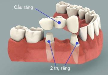Làm cầu răng có tốt không? – Tư vấn từ chuyên gia