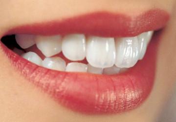 Điểm danh các phương pháp làm răng thẩm mỹ hot nhất hiện nay