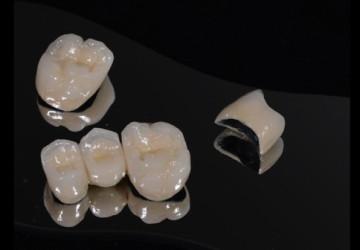 Răng sứ kim loại trong phục hình răng thẩm mỹ: Có nên không?