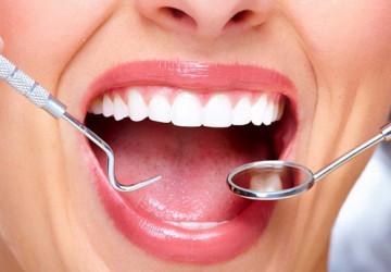 Chụp răng sứ ở đâu tốt tại Hà Nội?