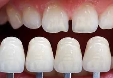 Những tầm quan trọng có nên bọc răng sứ không? Xem ngay<<<