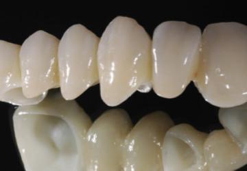 Răng sứ venus cho hàm răng trắng đều vượt thời gian