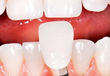 Sự thật bất ngờ về chụp răng sứ Venus – Làm răng sứ thẩm mỹ