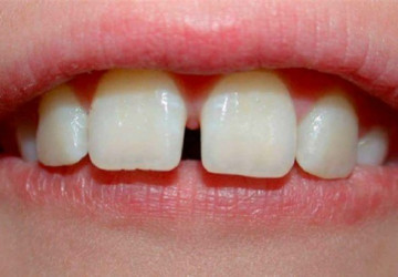Tại sao răng bị thưa – Nguyên nhân và cách giải quyết triệt để