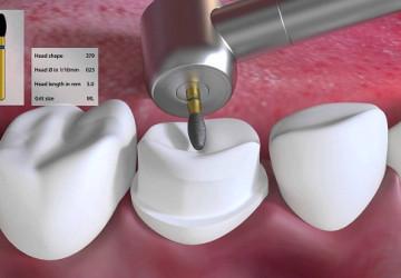Bật mí bạn nên kiêng gì sau khi hàn răng?
