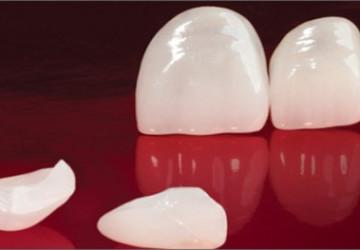 Răng sứ emax – Đặc điểm và những lưu ý khi sử dụng