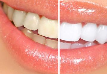 Bí quyết lấy cao răng tại nhà hiệu quả trong vài giây
