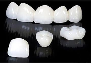 Bật mí cho bạn răng sứ titan tốt không và độ bền răng sứ titan