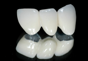 Răng sứ titan sử dụng được bao lâu? Kiến thức nha khoa