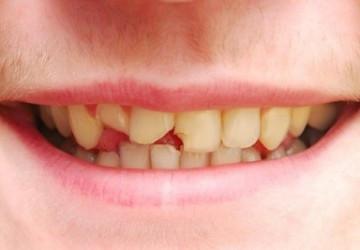 Top những nguyên nhân bị mẻ răng bạn không nên bỏ qua