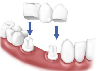 Làm cầu răng có thể dẫn đến hôi miệng không?