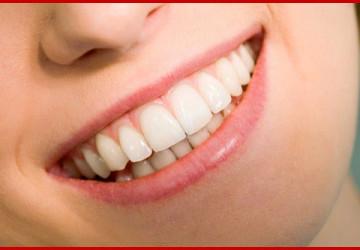 Làm răng sứ thẩm mỹ mang lại lợi ích gì?