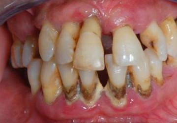 Giữa lại răng khôn gây ra những nguy hiểm gì?