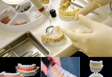 Làm răng sứ 4 cái | Chi phí và quy trình thực hiện như thế nào???