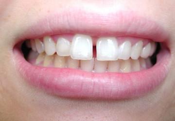 Làm răng sứ hay niềng răng khi răng thưa? <<< Xem ngay để biết